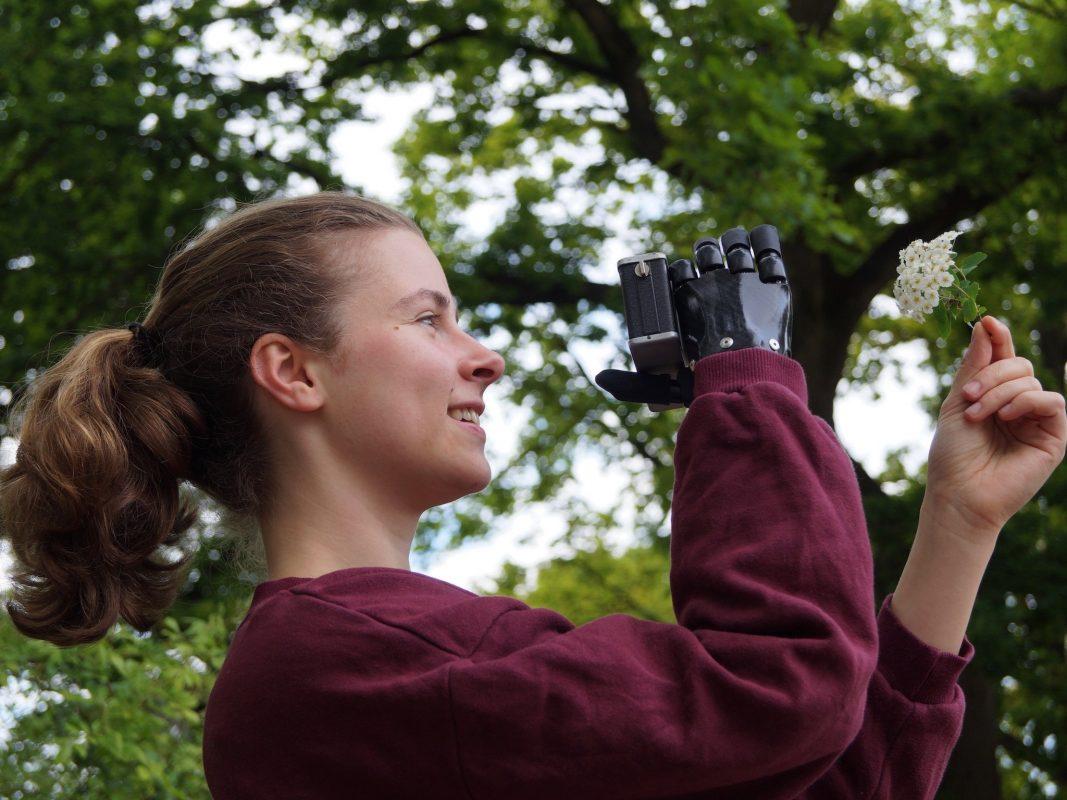 Greta beim Fotografieren mit ihrer Prothese. Foto: Greta Niewiadomski